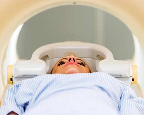 radiothérapie pour le cancer du rein